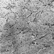 Sådan ser lungehindekræften ud, når man kommer helt tæt på.